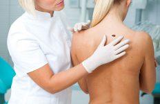 oncologiacutanea